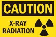¿Cuál es el riesgo de padecer cáncer después de un estudio radiológico?
